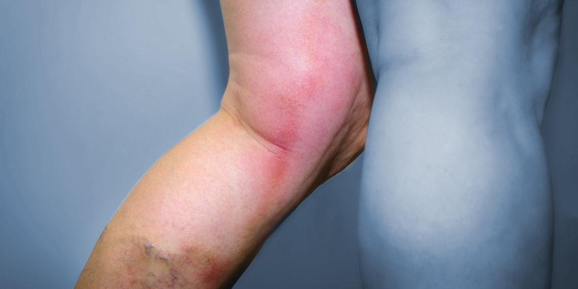 Atypical penile mondor's disease involvement of the circumflex vein