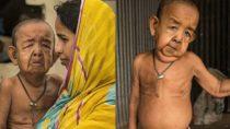 Der vierjährige Bayezid Hossain aus Bangladesch sieht aus wie ein 80-jähriger Greis. Mediziner rätseln, ob die seltene Erbkrankheit Progerie oder Inzucht für seinen Zustand verantwortlich ist. (Bild: Quelle: Youtube)