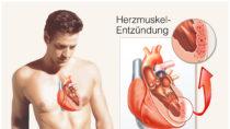 Oft sind Kinder von einer Herzmuskelentzündung betroffen. Bild: Henrie - fotolia