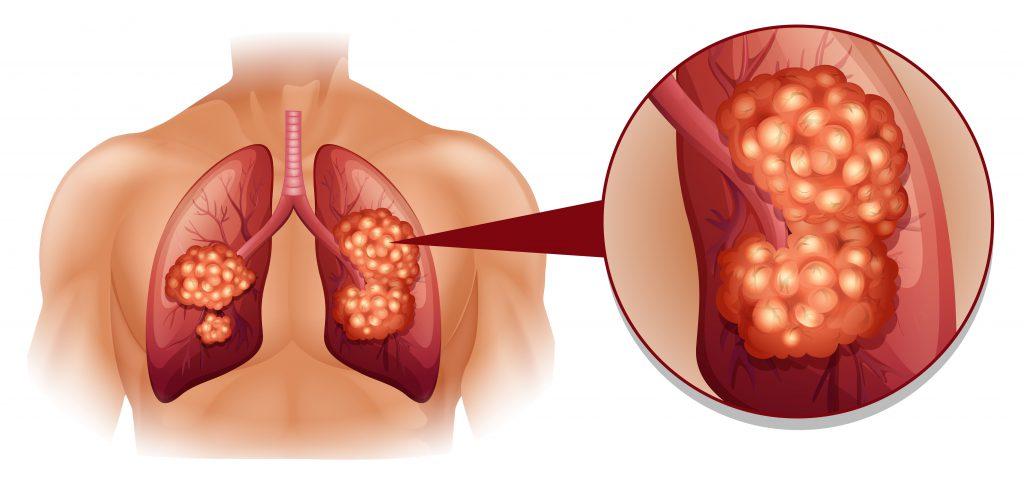 Lungenkrebs ist eine mögliche Ursache. Bild: lueringmedia - fotolia