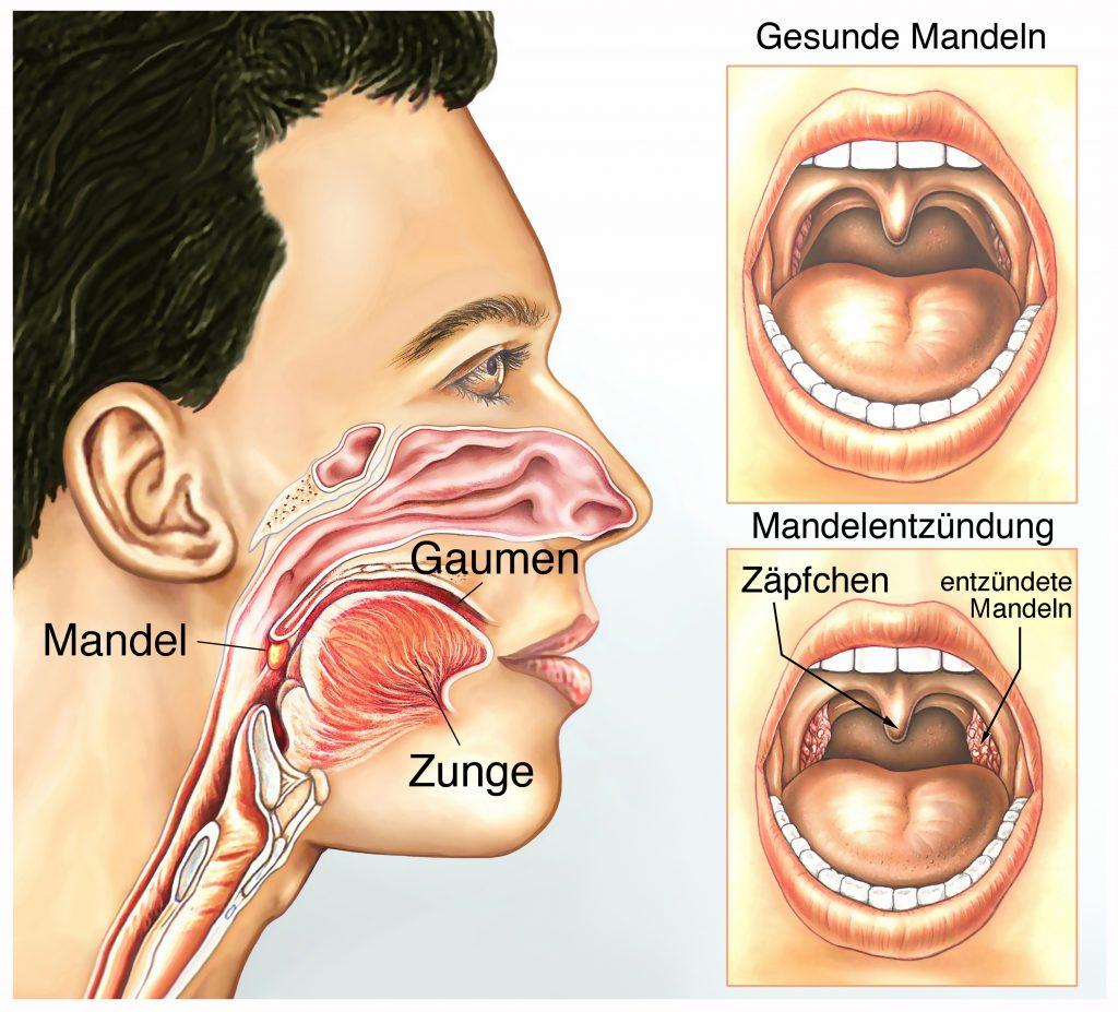 Mandelentzündung. Bild: Henrie - fotolia
