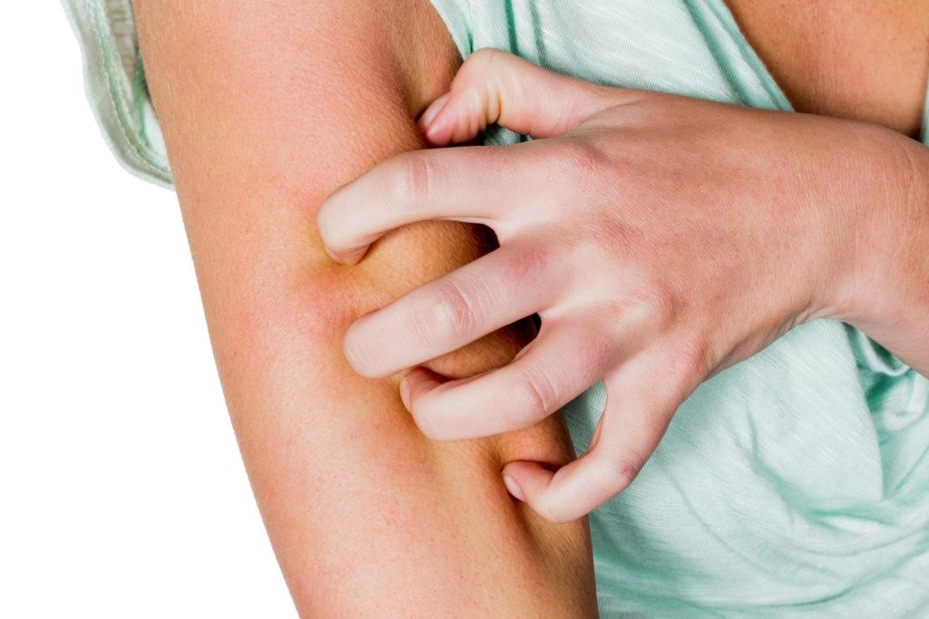 Stark juckende Haut ist ein Leitsymptom von Neurodermitis. Bild: Gina Sanders