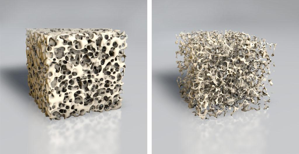 Vergleich der Knochenstruktur bei Osteoporose. Bild: Axel Kock - fotolia