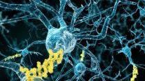 Die Bety-Amyloid-Plaques im Gehirn von Alzheimer-Patienten lassen sich durch einen speziellen Antikörper abbauen. (Bild: Juan Gärtner/fotolia.com)