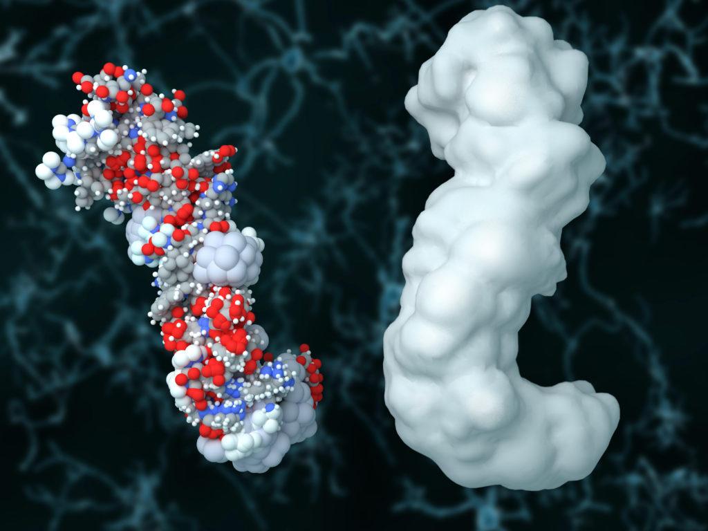Laut US-Forschern führt die Behandlung mit dem Antikörper Aducanumab bei Patienten mit frühen Formen von Alzheimer zu einer deutlichen Abnahme der Beta-Amyloid-Plaques. Auch der Abbau der geistigen Fähigkeiten verlangsamt sich. (Bild: Juan Gärtner/fotolia.com)