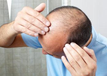 Wenn wir unter Haarverlust leiden, leidet auch oft unser Selbstbewusstsein. Forscher fanden jetzt heraus, dass ein Medikament bei vielen Menschen mit Alopecia areata zum Nachwachsen der Haare führt. (Bild: Kurhan/fotolia.com)
