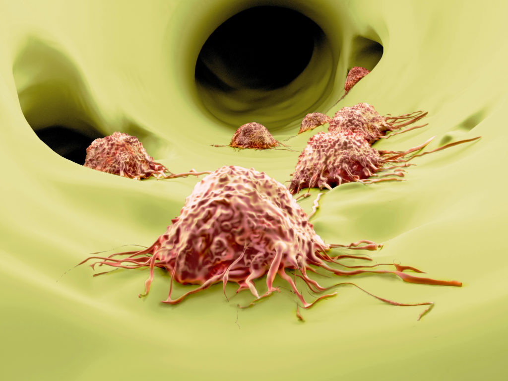 Forscher der MedUni Graz haben einen möglichen Ansatz entdeckt, um Krebszellen in den programmierten Zelltod zu schicken. (BIld: Juan Gärtner/fotolia.com)