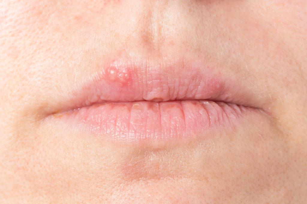 Mund mit Lippenbläschen