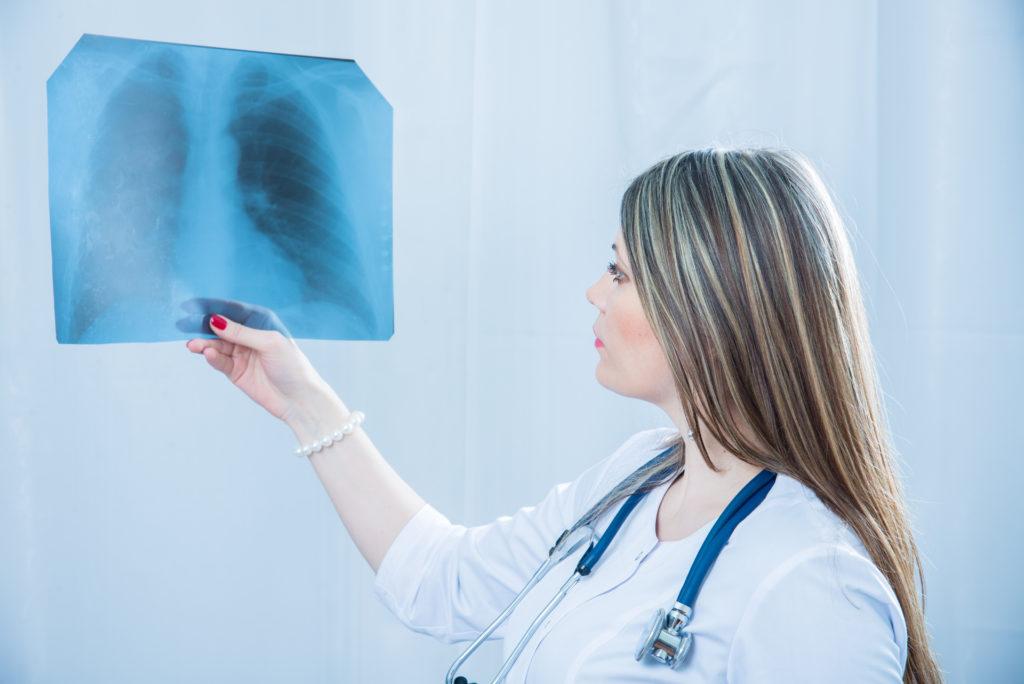 Lungenkrebs ist schwer frühzeitig zu erkennen. Wird diese Form von Krebs zu spät erkannt, hat sie sich oft schon bis in das Gehirn ausgebreitet. Dann setzen Ärzte häufig eine Strahlentherapie ein, um die Erkrankung zu behandeln. Experten raten aber jetzt davon ab, ältere Menschen dieser Art der Therapie zu unterziehen. (Bild: liukovmaksym/fotolia.com)