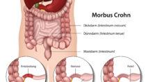Chronische Darmerkrankungen können eine große Belastung für das Leben von Betroffenen sein. Morbus Crohn ist eine dieser Erkrankungen. Forscher fanden jetzt heraus, dass ein Pilz die Ursache für diese Probleme sein könnte. (Bild: bilderzwerg/fotolia.com)