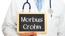 Morbus Crohn ist eine chronische Darmerkrankung. Oft müssen sich Betroffene einer Darmoperation unterziehen. Forscher fanden heraus, dass Raucher nach einer Darmoperation eine erhöhte Wahrscheinlichkeit für einen Rückfall haben. (Bild: DOC RABE Media/fotolia.com)