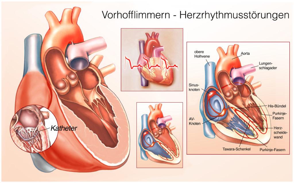 Menschen mit Vorhofflimmern haben ein erhöhtes Risiko für verschiedene Erkrankungen, so das Ergebnis einer neuen Studie. Betroffene versterben auch doppelt so häufig an den Auswirkungen von Herzerkrankungen. (Bild: Henrie/fotolia.com)