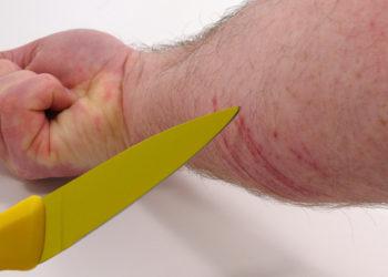 Ritzen: Das bewusste Verletzen der Arme und Beine. Auch andere Körperteile können betroffen sein. TwilightArtPictures - fotolia