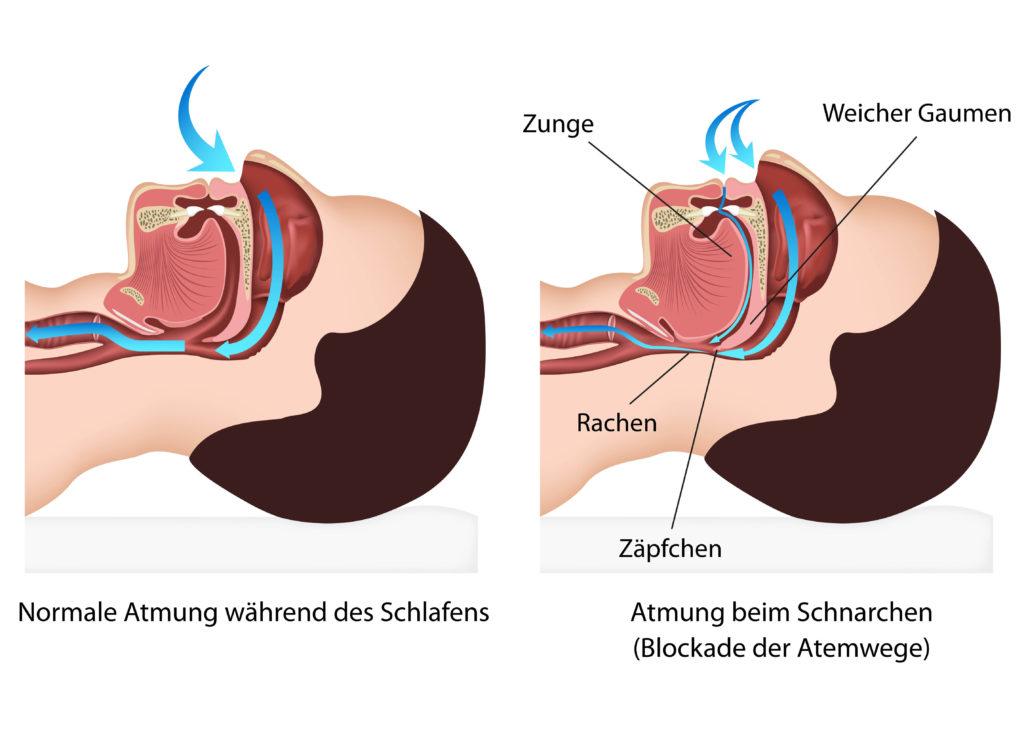 Neue Therapieansätze bei Schnarchen. Bild: bilderzwerg - fotolia