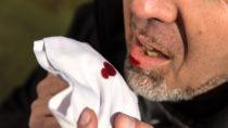 Husten blutgeschmack mund
