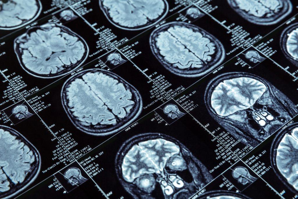 Alzheimer führt zu einer Asymmetrie im Gehirn, die schon früh erkennbar ist. (Bild: Nomad_Soul/fotolia.com)