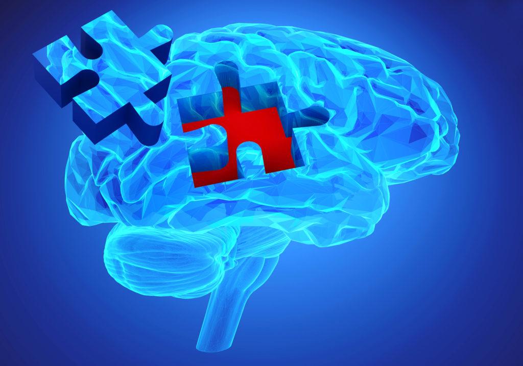 Durch das Beta.Amyloid, welches sich im Gehirn von Alzheimer-Patienten anreichert, werden die Zellkraftwerke beeinträchtogt, was Ursache für das Absterben der Neuronen sein könnte. (Bild: goa novi/fotolia.com)