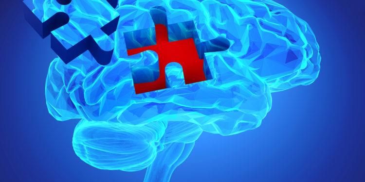 Bild eine Gehirns als Puzzle.