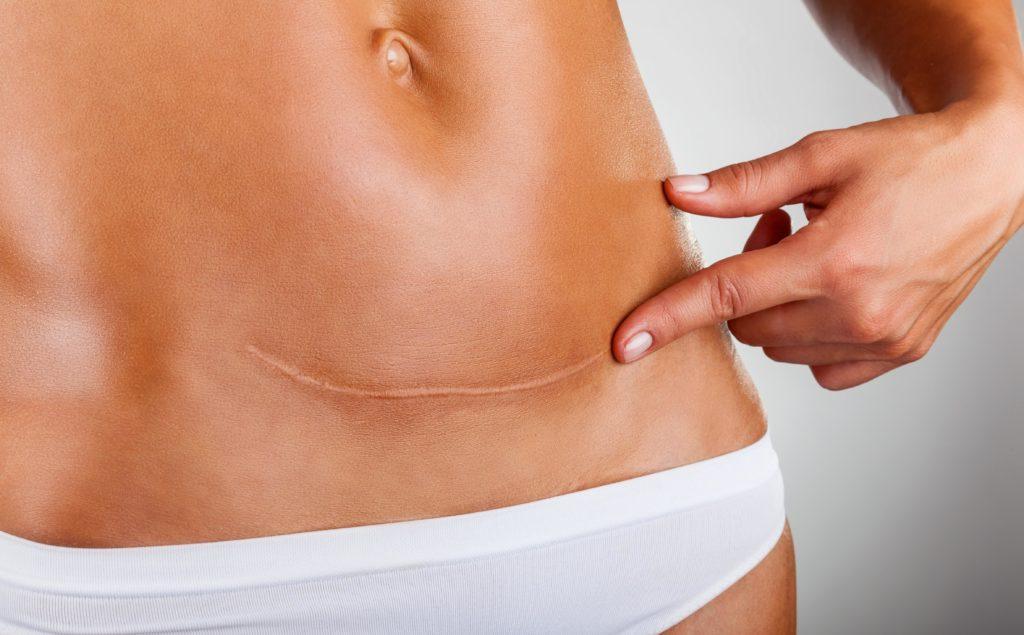 Ein Wirkstoff der Blaualge Spirulina platensis stärkt die Gesundheit der Haut und kann auch zur Narbenpflege eingesetzt werden. (Bild: Artem Furman/fotolia.com)