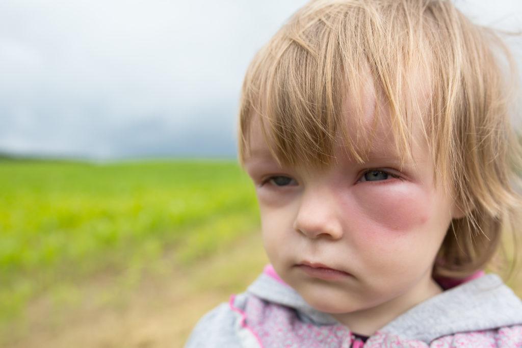 Die Krankheit lässt sich leicht mit einer Allergie verwechseln