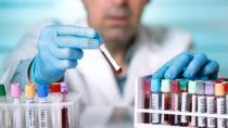 In Großbritannien stehen Forscher angeblich kurz vor der HIV-Heilung. Nach der Behandlung mit einer neuartigen Therapie ist im Blut eines Patienten das HI-Virus nicht mehr nachweisbar. (Bild: angellodeco/fotolia.com)