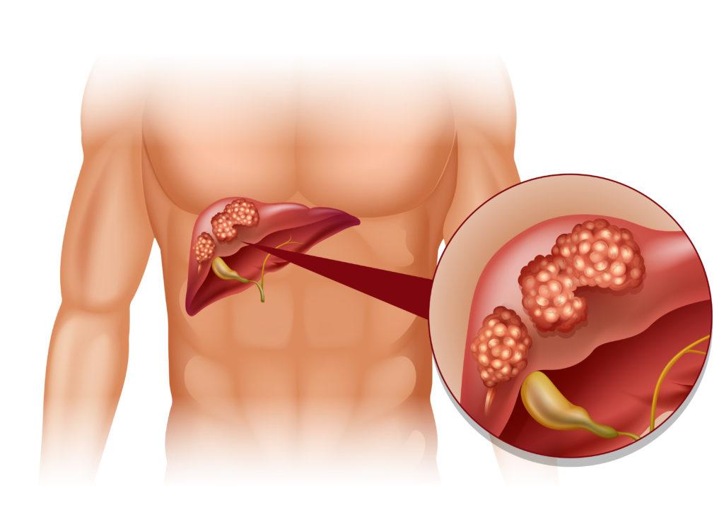 Übergewicht und Diabetes können andere Erkrankungen begünstigen. Eine solche Erkrankung ist Leberkrebs. Forscher stellten fest, dass Diabetes und ein zu hoher BMI das Risiko für Leberkrebs erheblich vergrößern. (Bild: blueringmedia/fotolia.com)