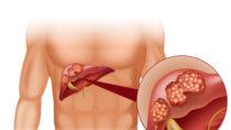 Übergewicht und Diabetes können ander  Erkrankungen begünstigen. Eine solche Erkrankung ist Leberkrebs. Forscher stellten fest, dass Diabetes und ein zu hoher BMI das Risiko für Leberkrebs erheblich vergrößern. (Bild: blueringmedia/fotolia.com)