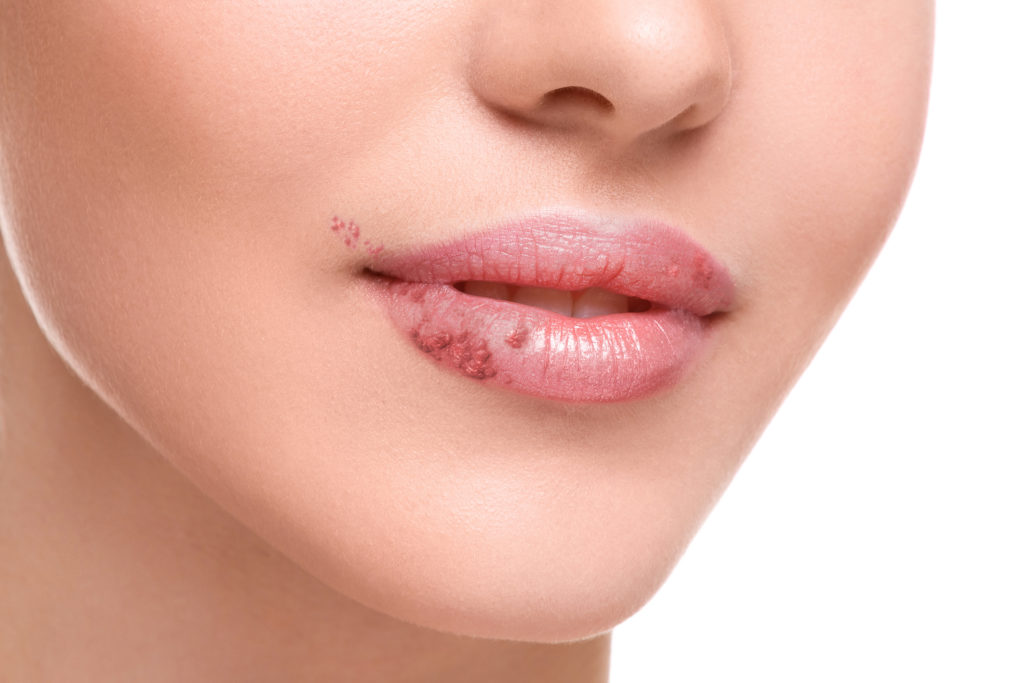 Eltern, die unter Lippenherpes leiden, sollten bei der Säuglingspflege stets einen Mundschutz tragen. Das Virus kann bei Neugeborenen lebensbedrohliche Situationen auslösen. (Bild: blackday/fotolia.com)