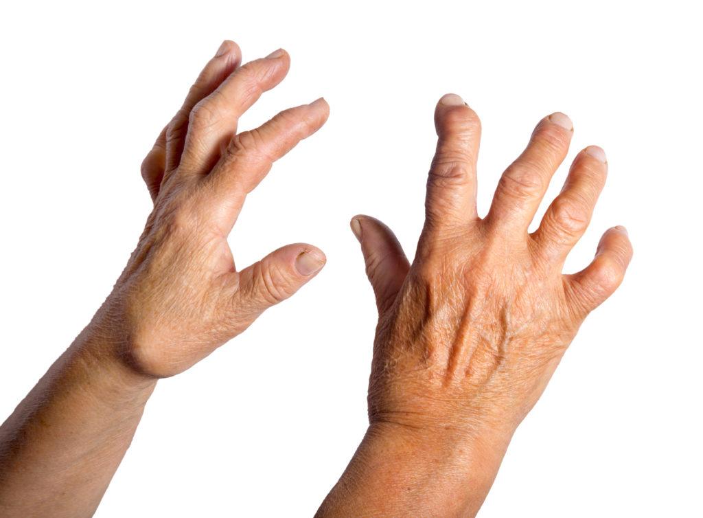 Bei der Rheumatoiden Arthritis werden die Gelenk zunehmend zerstört und in ihrer Funktion eingeschränkt. Training an der Spielkonsole kann helfen, die Beweglichkeit länger zu erhalten. (Bild hriana/fotolia.com)