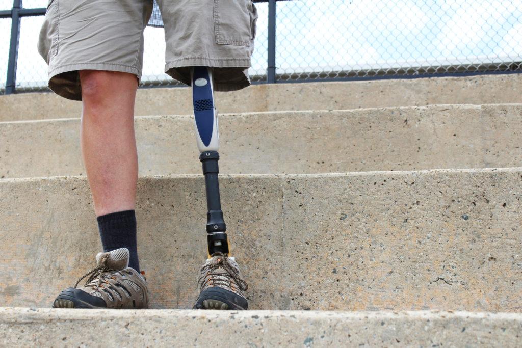 Amputiertes Bein. Gehhilfen erlauben ein normales Leben. Bild: ottoblotto - fotolia