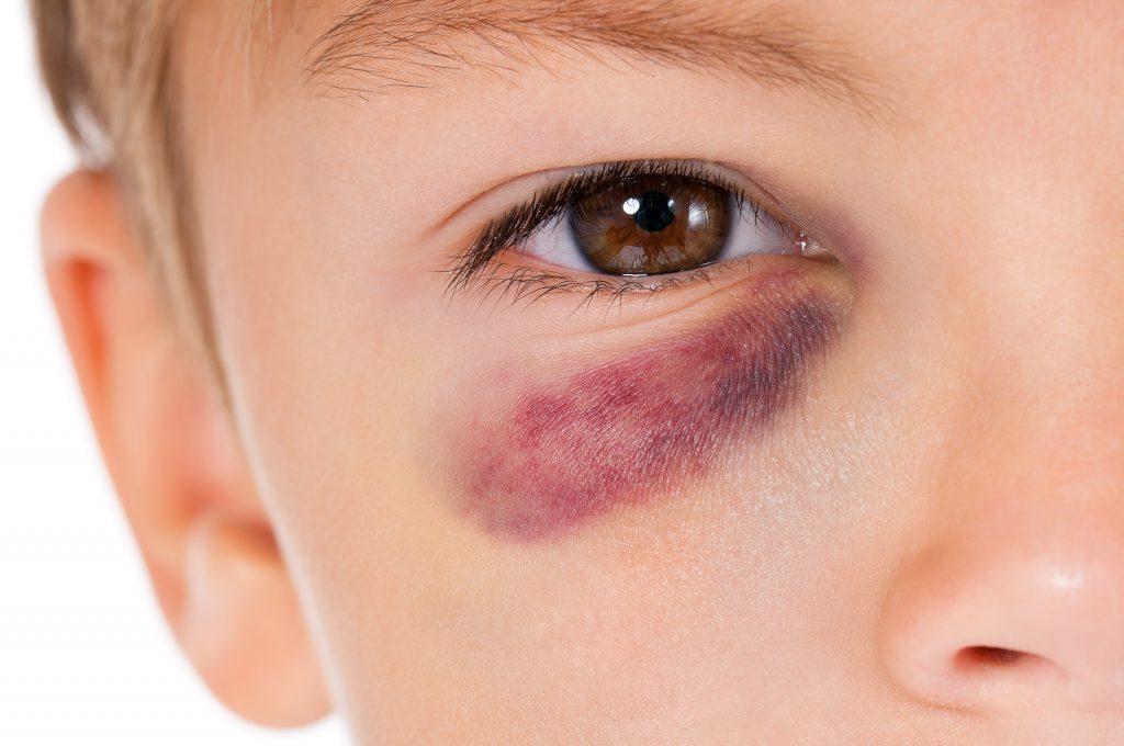 Blaues Auge kann zu einem rotem Auge führen. Bild: valiza14 - fotolia
