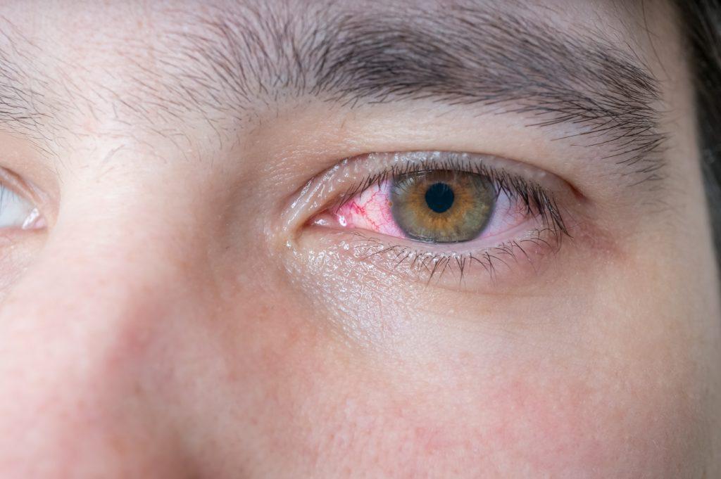 Blut im Auge kann verschiedene Ursachen haben. Manchmal steckt auch eine ernsthafte Erkrankung wie Diabetes dahinter. Bild: vchalup - fotolia