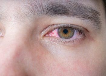 In Indien haben Ärzte einem Mann einen 15 Zentimeter langen Wurm aus dem Auge entfernt. Der Parasit musste beim Herausziehen am Leben bleiben. (Bild: vchalup/fotolia.com)