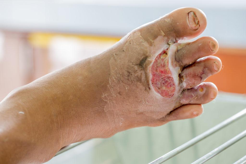 """Amputationen von """"diabetischen Füßen"""" sind relativ häufig. Bild:  ittipol - fotolia"""