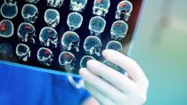 Hirnforschung unter der Lupe. Bild: sudok1 - fotolia