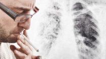 Lungenkrebs ist in den meisten Fällen tödlich. Bild: Bits and Splits - fotolia