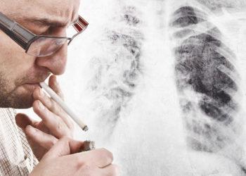Lungenkrebs wird meist durch Rauchen ausgelöst. Die Heilungschance ist umso größer, je eher ein Tumor entdeckt wird. Ein Atemtest könnte künftig bei der Diagnose helfen. (Bild: Bits and Splits/fotolia.com)