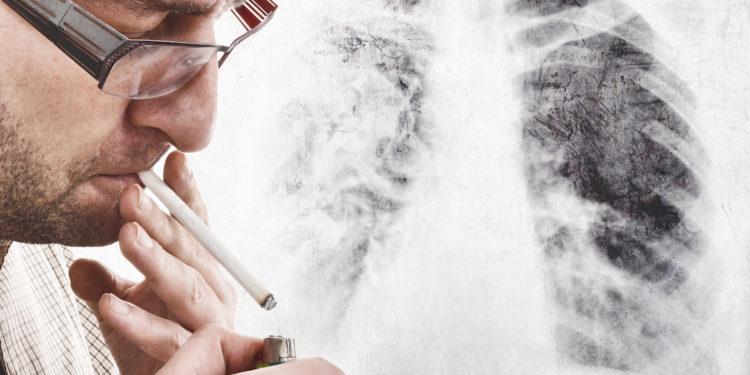 Lungenkrebs durch rauchen aufhoren