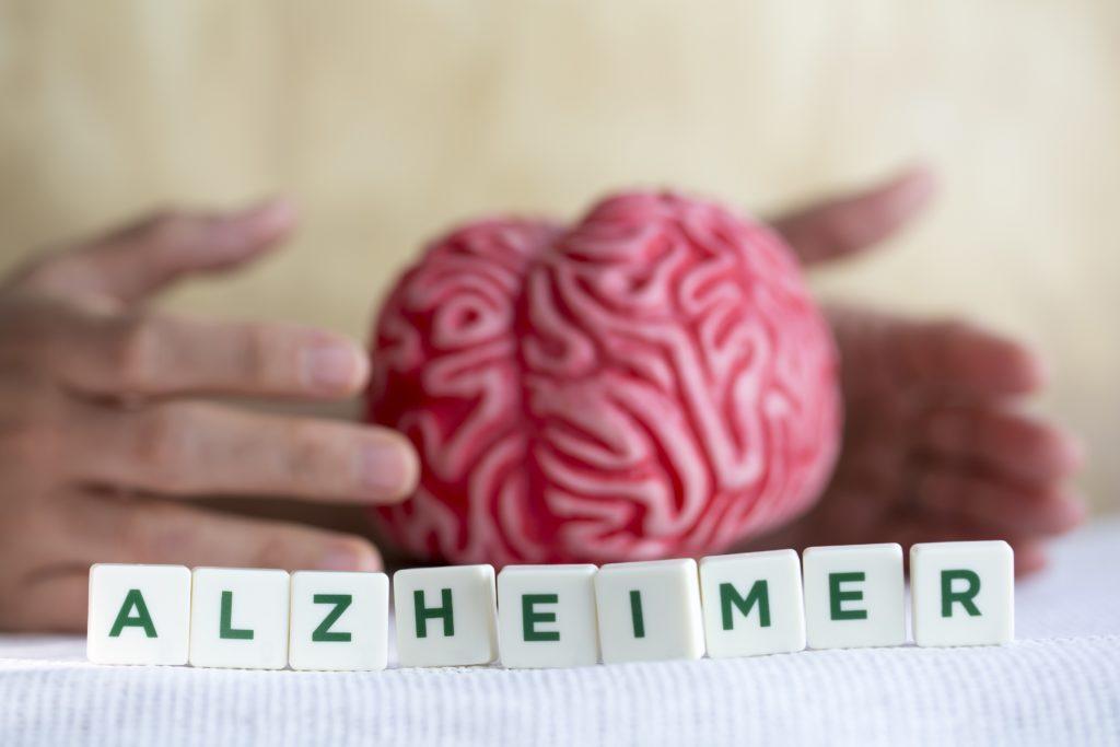 Mediziner suchen schon lange nach den Ursprüngen von Alzheimer-Erkrankungen. Jetzt entdeckten Wissenschaftler, dass Entzündungen im Gehirn eine wichtige Rolle bei der Entwicklung und Progression von Alzheimer spielen. (Bild: aytuncoylum/fotolia.com)