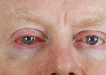 """In den Herbstmonaten häufen sich die """"Augengrippe""""-Erkrankungen. Experten erklären, wie man sich vor einer Infektion schützen kann. (Bild: Birgit Reitz-Hofmann/fotolia.com)"""