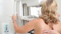 In Deutschland werden jährlich 70.000 Brustkrebs-Neuerkrankungen gezählt. Dank einer neuen Technologie wurden die Diagnosemöglichkeiten verbessert - und das bei geringerer Strahlenbelastung. (Bild:  Sven Bähren/fotolia.com)