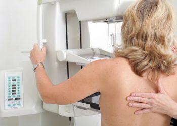 Frau bei der Mammographie zur Früherkennung von Brustkrebs