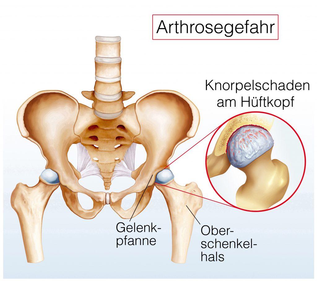 Oft sind Ermüdungsschmerzen erste Anzeichen bei einer Hüftarthrose. (Biild: Henrie/fotolia.com)