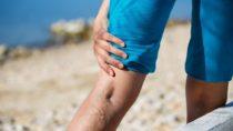 Manche Menschen haben familiär bedingt schon sehr früh unter Krampfadern zu leiden. Zur Behandlung des Venenleidens steht schon seit Jahren eine Radiowellentherapie zur Verfügung. (Bild: zlikovec/fotolia.com)