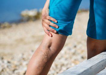 In einer aktuellen Studie konnte bestätigt werden, dass neben bekannten Risikofaktoren wie Übergewicht, Rauchen und Venenthrombosen auch die Körpergröße ein Risikofaktor für Krampfadern ist. (Bild: zlikovec/fotolia.com)