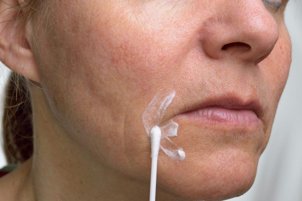 Das Auftragen einer Zinksalbe hat sich bei der Behandlung entzündeter Mundwinkel vielfach bewährt. Auch einfache Wund- und Heilsalbe kann helfen. (Bild: fpic/fotolia.com)