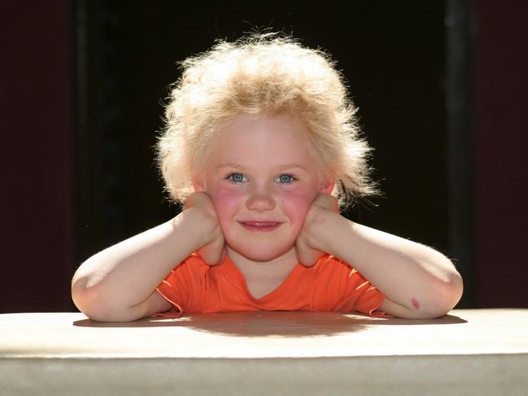 Manche Menschen haben Haare wie ein Struwwelpeter, die sih praktisch nicht kämmen lassen. Die Ursache liegt in den Genen. (Bild: www.uni-bonn.de/ Foto: privat)