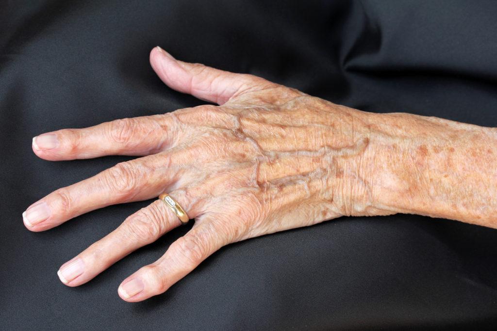 Dünne Haut können ein Anzeichen für verschiedene Erkrankungen sein. Bild: Astrid Gast- Fotolia
