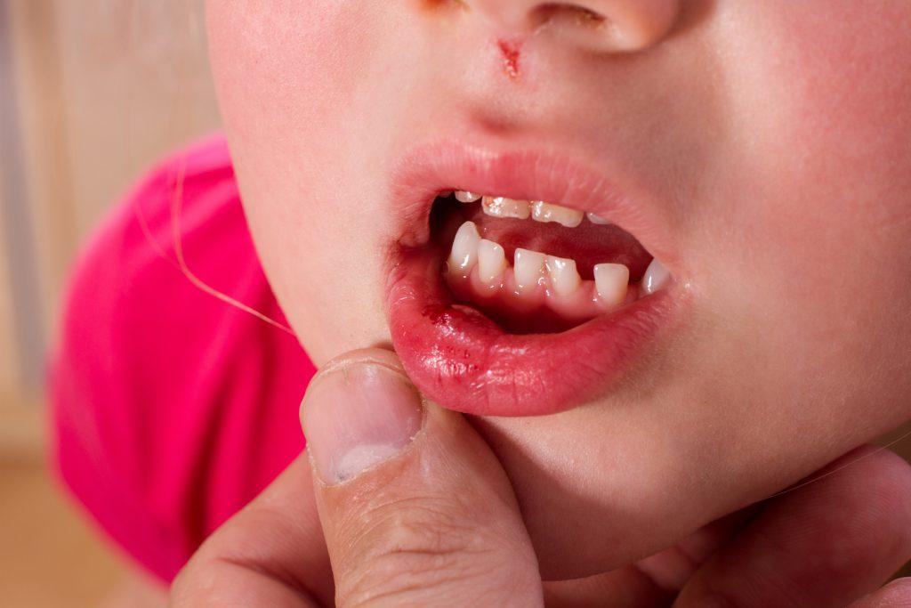 Geschwollene Lippen als Symptom. Bild: SENTELLO-fotolia