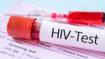 Experten warnen: Noch immer stecken sich viele - vor allem jüngere - Menschen mit dem HI-Virus an. (Bild: gamjai/fotolia.de)